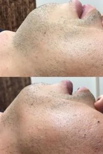 ヒゲ脱毛1ヶ月4回